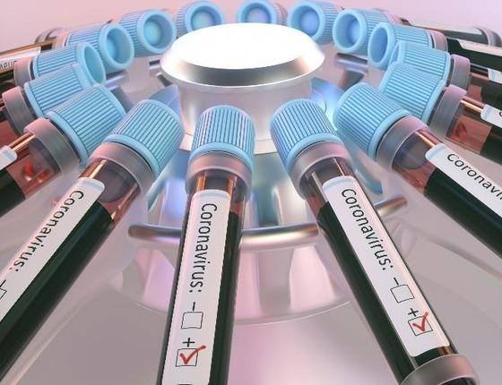 Coronavírus: Brasil supera 363 mil casos e mais de 22 mil óbitos; veja