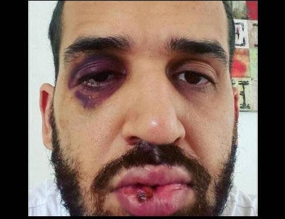 Médico é agredido com chutes e socos por defender o lockdown
