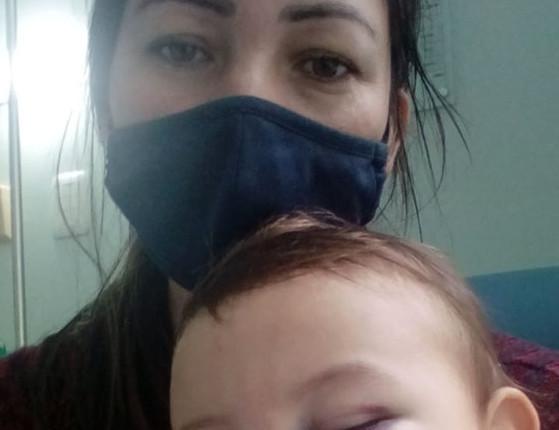 SC: Mãe de bebê ferido em ataque mostra como ficou rosto do filho
