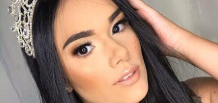 Miss de 21 anos morre durante cirurgia de emergência em Roraima