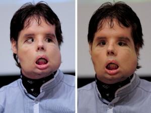 Homem que fez o primeiro transplante total de rosto do mundo mostra o resultado