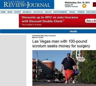 Homem tem saco escrotal de 45 kg e precisa de cirurgia de US$ 1 milhão