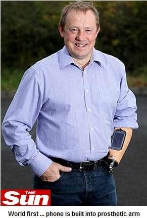 Homem que nasceu sem o braço tem prótese para celular