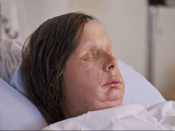 Mulher desfigurada por macaco fala pela primeira vez após transplante de face