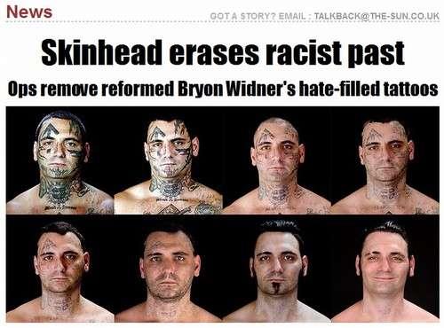 Ex-skinhead passa por 25 cirurgias para remover tatuagens racistas
