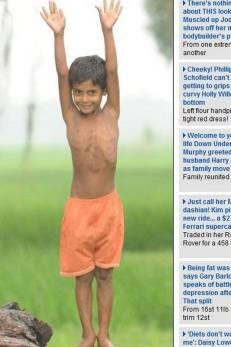 Indiano que nasceu com 4 braços e 4 pernas mostra resultado de cirurgia pela primeira vez