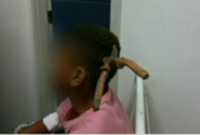 Menino atingido por alicate deixa CTI no RJ, diz hospital