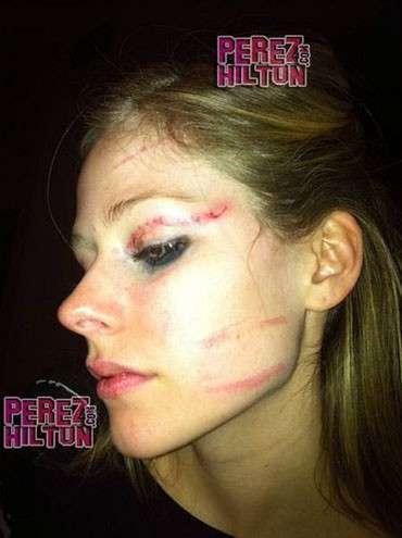 Site exibe foto de Avril Lavigne após agressão em bar