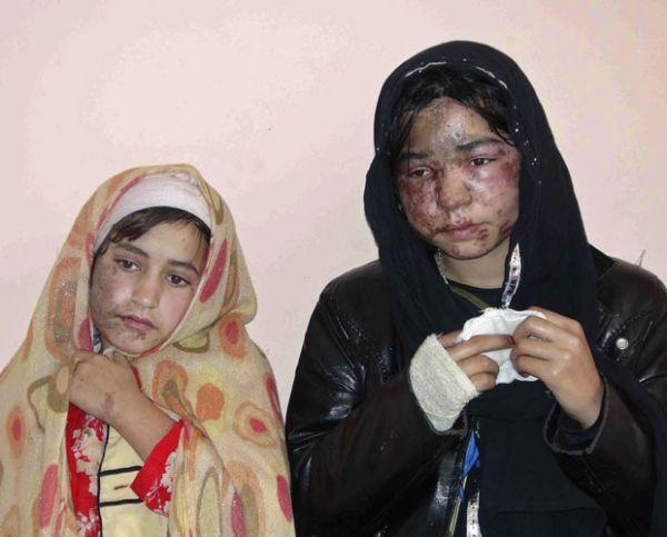 Família afegã é atacada com ácido após recusar casamento de filha