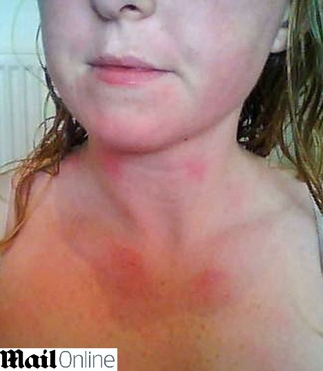 Condição rara: Mulher britânica de 26 anos não pode chorar por ser alérgica a água