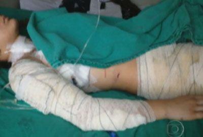 Garota foi agredida por colegas por causa de ex-namorado, diz mãe