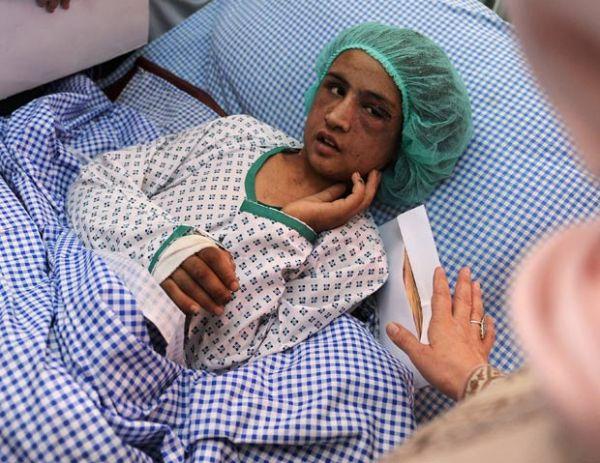 Jovem foi torturada durante seis meses pela família do marido