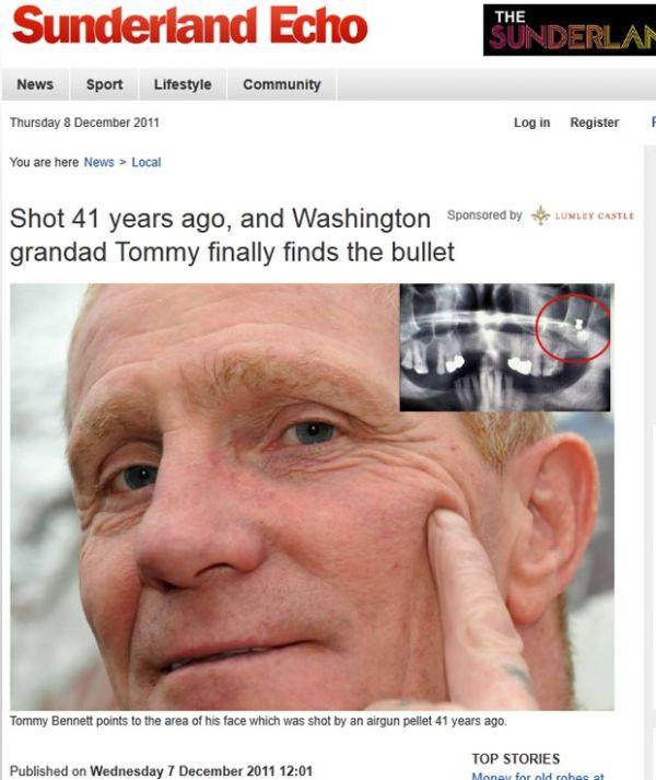 Britânico descobre que viveu por 41 anos com chumbinho na mandíbula