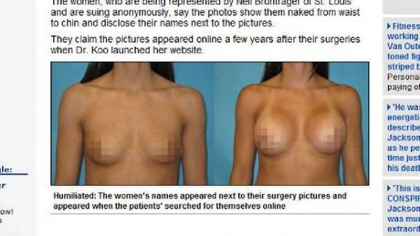 Pacientes processam cirurgião por imagens de seios na internet