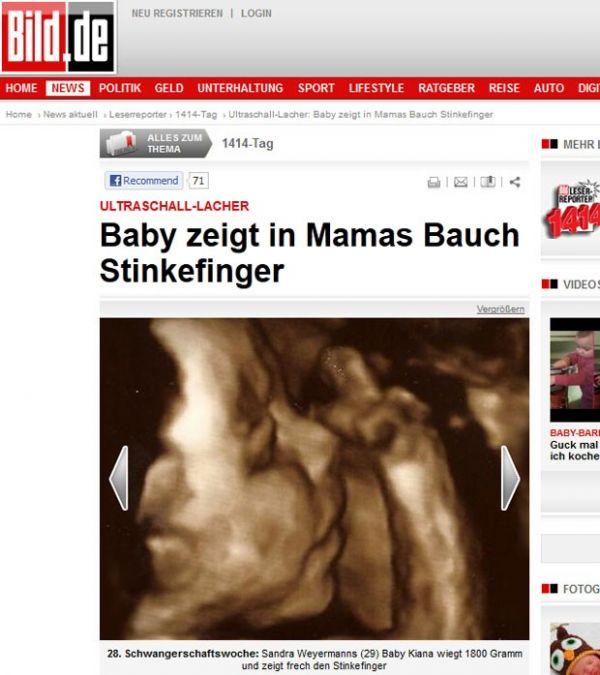 Feto aparece mostrando dedo médio em ultrassom na Alemanha