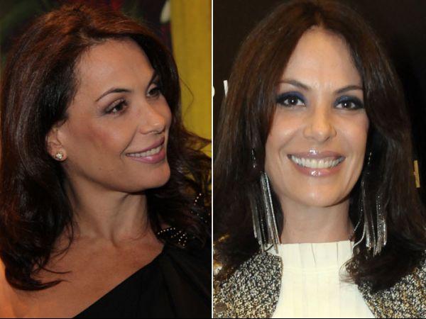 Carolina Ferraz admite botox: