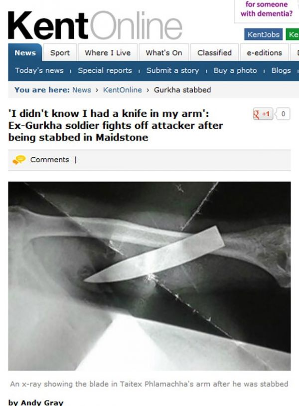 Homem luta com ladrão sem notar que lâmina estava enterrada no braço