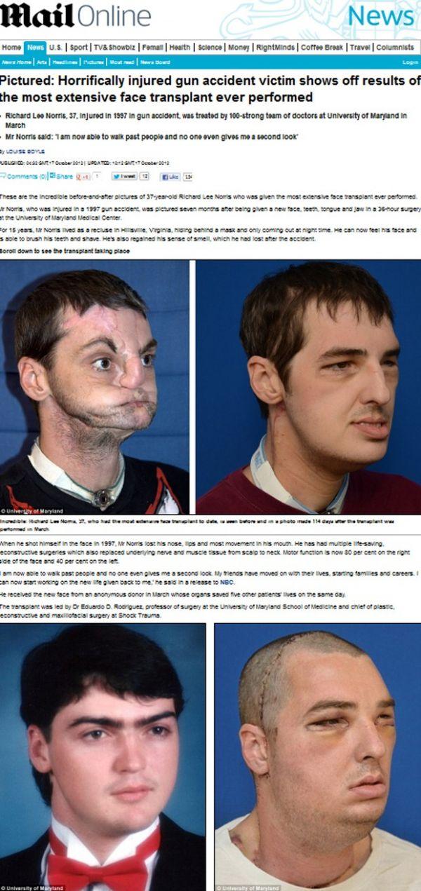 Homem que refez rosto está quase 100% recuperado