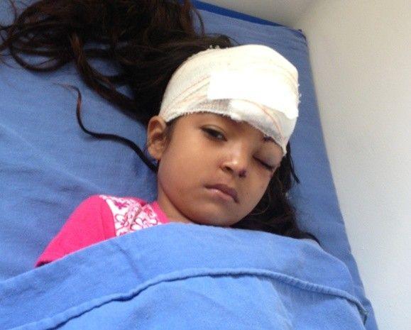 Menina de quatro anos é atacada por cadela pit bull