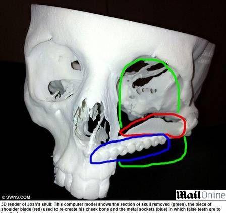 Britânico reconstrói face mutilada por câncer com partes do ombro e coxa