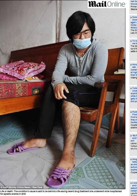 Tratamento faz chinesa de 16 anos ficar com barba; fotos!