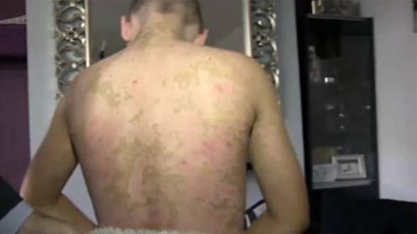 Adolescente que perdeu 65% da pele em reação alérgica