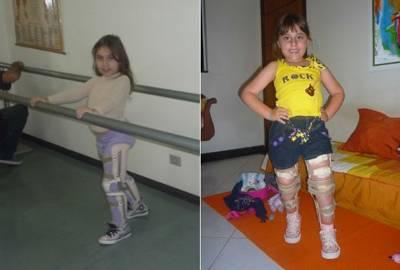Mãe pede que ladrões devolvam aparelhos que mantinham filha em pé