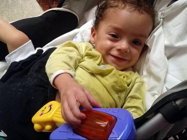 Após cirurgia de separação, bebê comemora aniversário com família