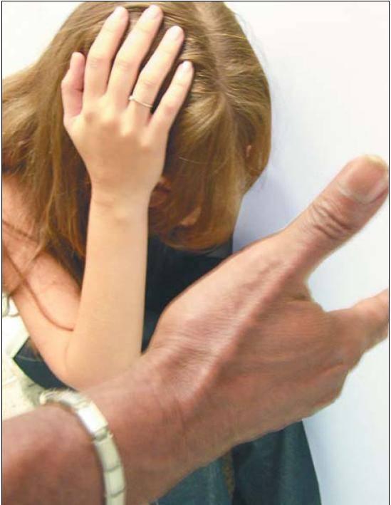 Violência contra a mulher:  Subnotificação de dados mascara a realidade