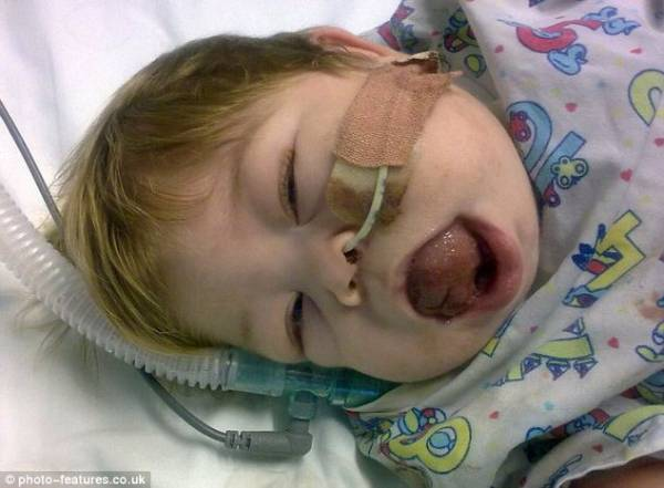 Menina faz cirurgia para se curar de doença que provocou crescimento anormal da língua