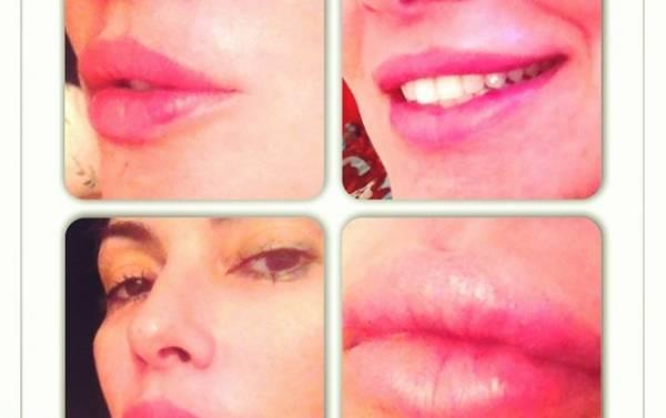 Núbia Óliver faz preenchimento labial e mostra resultado na web