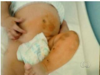 Família denuncia agressão a bebê de 5 meses em berçário de GO