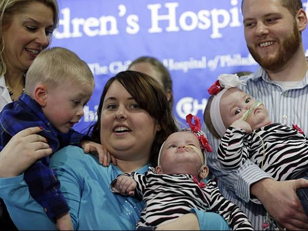 Gêmeas unidas pelo tórax são separadas após operação de 7 horas