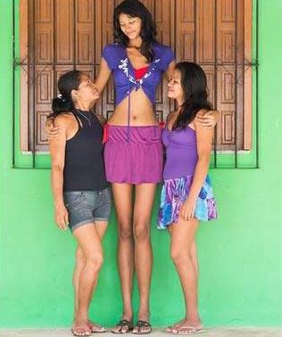 Adolescente mais alta do mundo encontra o amor ao lado de baixinho no Pará
