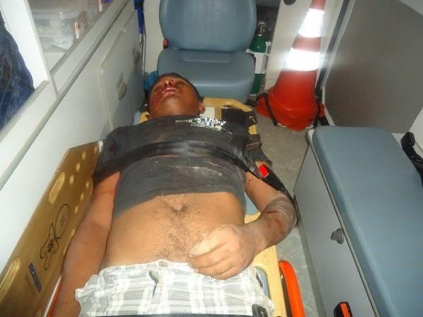 Jovem é levado em estado grave para o HUT após acidente violento em J.de Freitas