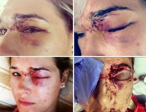 Jogadora que quase perdeu olho em tacada do marido posta foto na web e cria polêmica