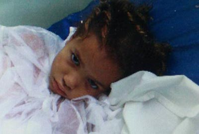 Menina atingida por bala perdida segue em estado grave; médico teria pedido demissão