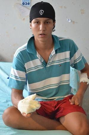Garoto de 14 anos perde quatro dedos ao soltar fogos de artifício