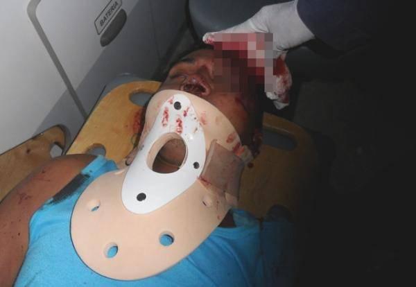Jovem morre em colisão entre carro e moto no Piauí