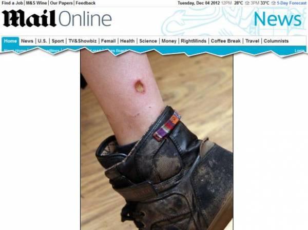 Celular BlackBerry explode e queima menino de 11 anos