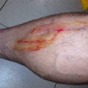 Atacante do São Paulo posta foto de perna ensanguentada para reclamar de violência