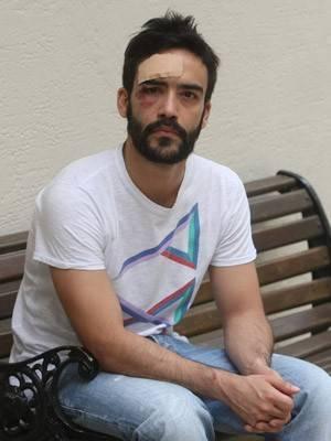 Dupla suspeita de agredir gay pode levar multa de até R$ 55 mil