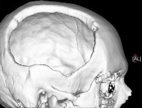 Homem perde pedaço da cabeça em queda e médicos colocam gordura do abdomen no local