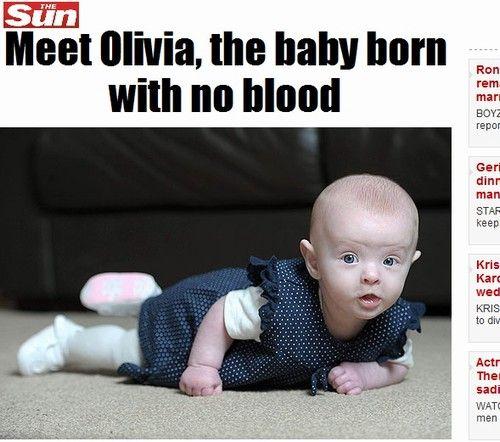 Bebê nasce sem sangue e sobrevive; só deram 2 horas de vida