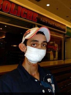 Câncer deforma rosto e jovem arrecada R$ 100 mil na web para fazer cirurgia
