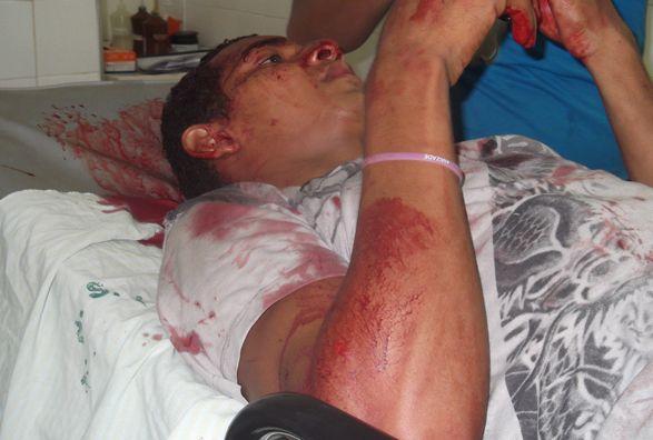 Colisão deixa motociclista ferido na PI-113; fotos