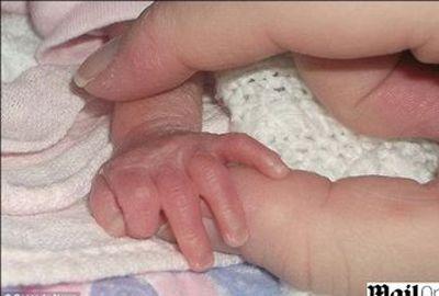 Bebê sobrevive após nascer com 730 g e ficar sem batimentos cardíacos por 21 minutos
