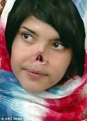 Casamento forçado: Jovem que teve nariz decepado pelo marido tenta reconstruir vida