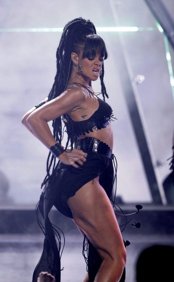 Rihanna exagera durante show e sai com perna deformada em foto