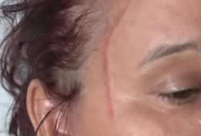 Mulher é agredida na frente de promotor em disputa por herança
